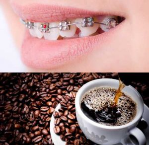 Traditional Braces and Coffee